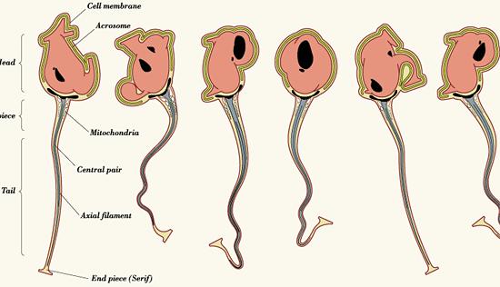 Typosperm